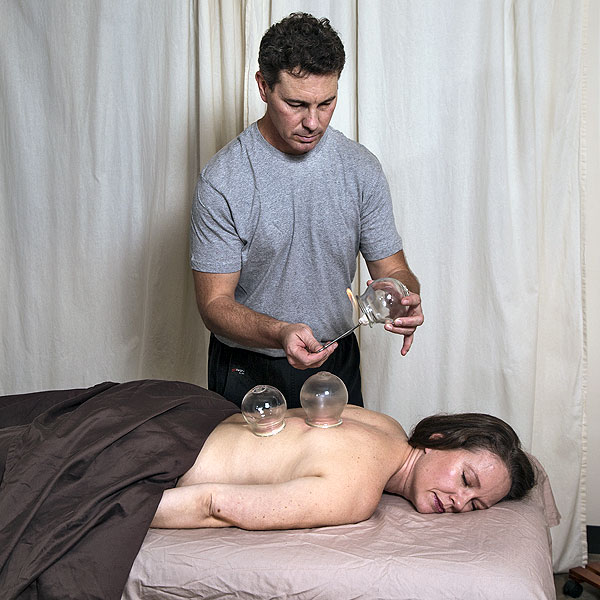 Gary performing cupping on a patient